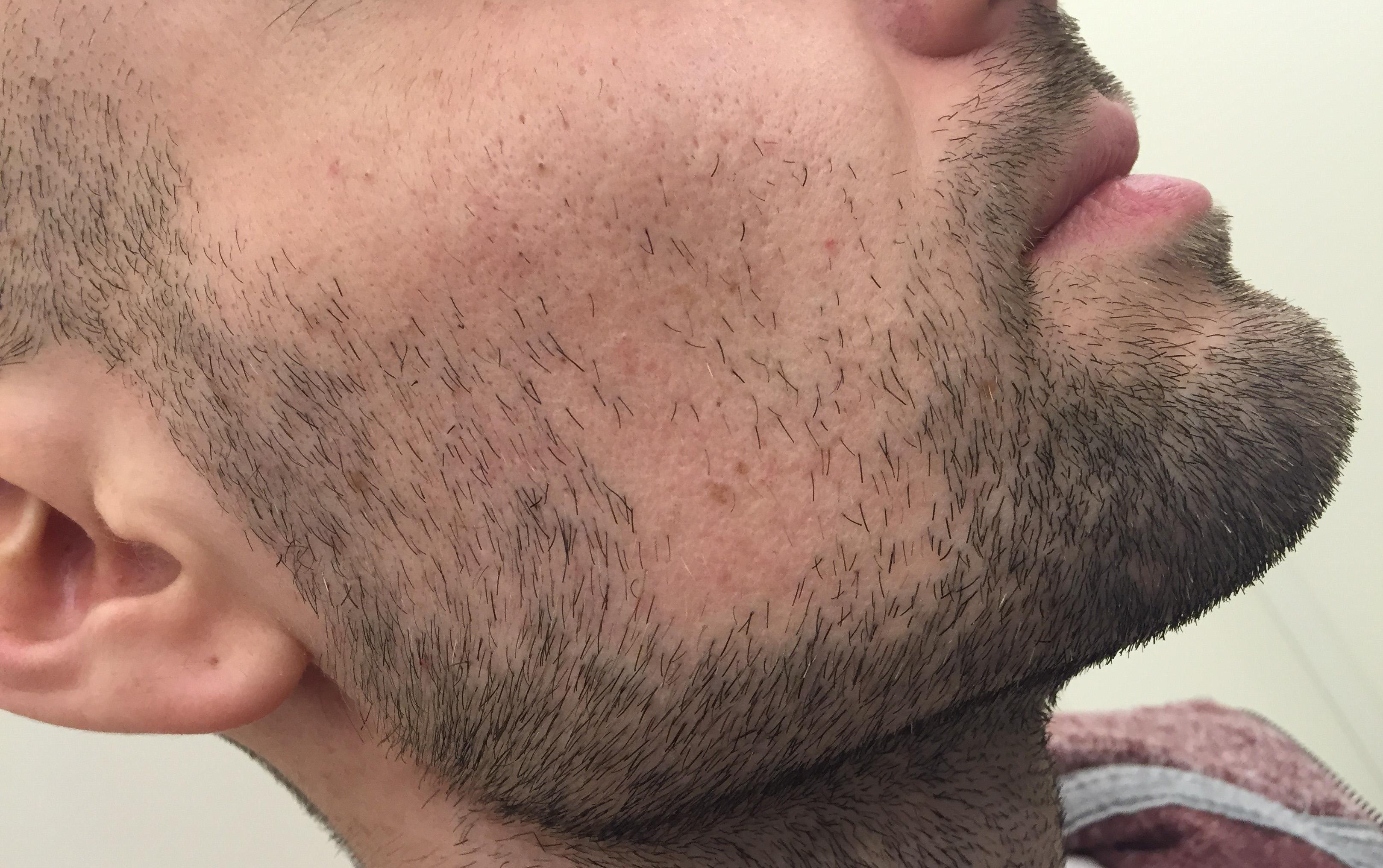 greffe barbe 2_edited
