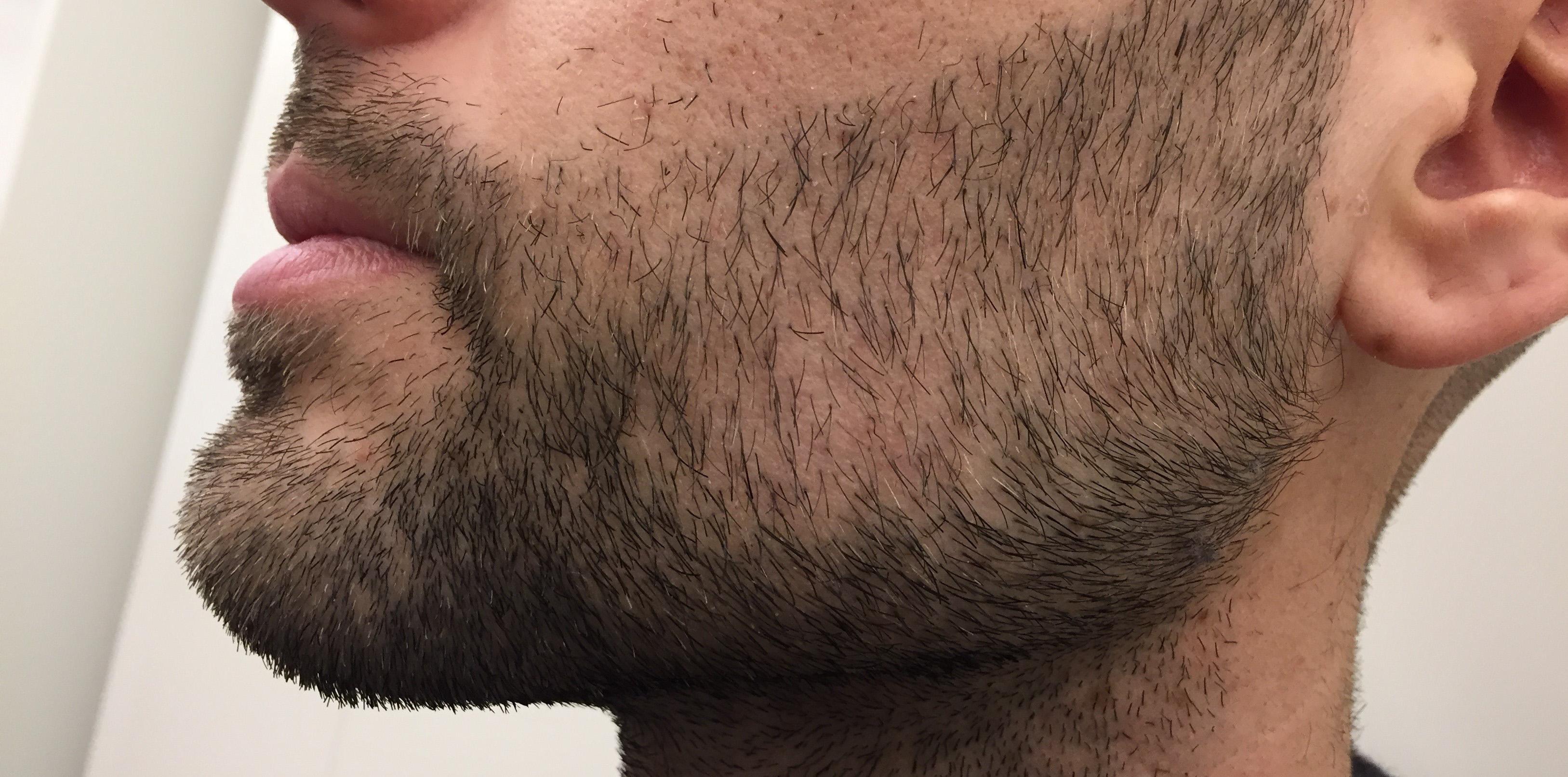 greffe barbe 5_edited