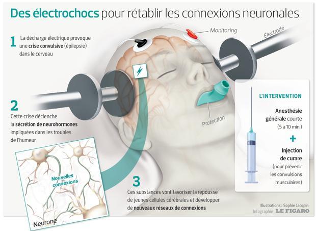 Electroconvulsivothérapie